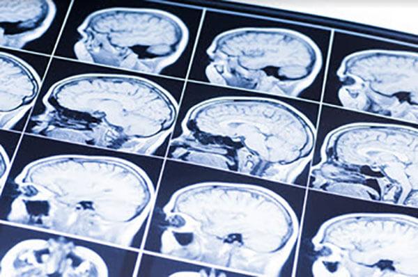 Average Settlement For Concussion